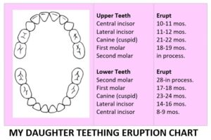 Baby Teething and Fever- My Daughter Teeth Eruption Chart